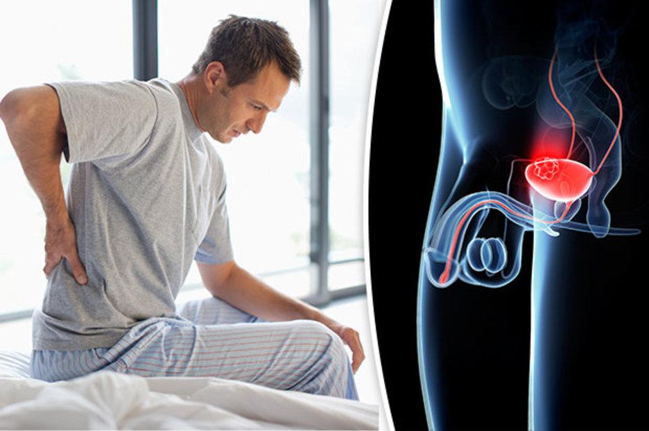 рак сечового міхура у чоловіків
