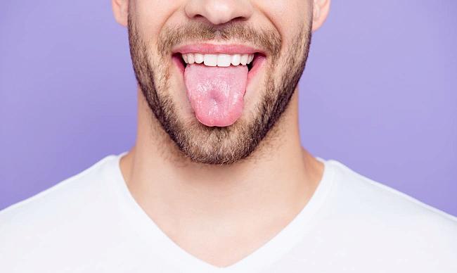 білий наліт на язику лікування