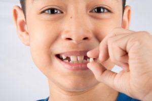 коли випадають молочні зуби